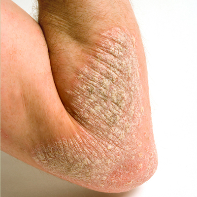 The term psoriasis derives from the Greek psora, meaning itch 2